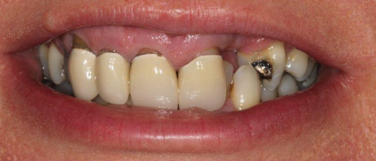 blackheath dentist smile makeover
