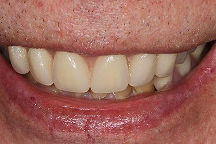 John after smile makeover at Dental Beauty Blackheath in kent