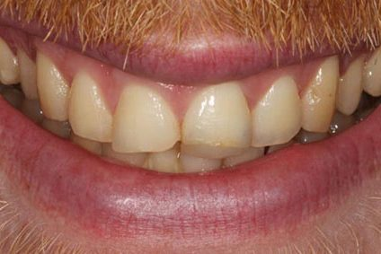 steve-before-dental-bonding-2