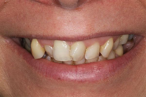 teeth straightening in blackheath