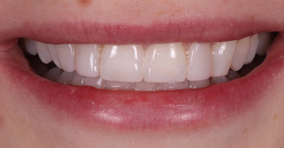 dental beauty cosmetic bonding treatment after 2