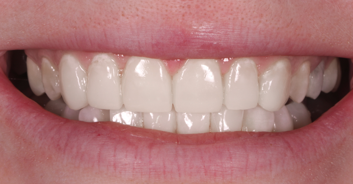 dental beauty cosmetic bonding treatment after 3
